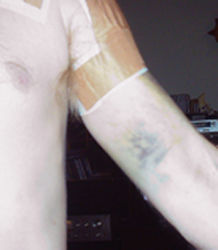 Photo of the inside of Hughie's left arm showing the blueberry muffin bruise on his bicep